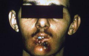 Рак губ. Что нужно знать?