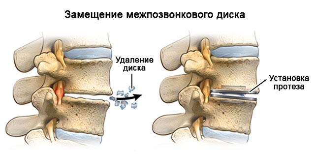 замещение межпозвонкового диска протезом