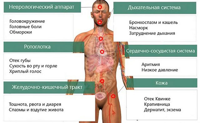 симптомы непереносимости меда