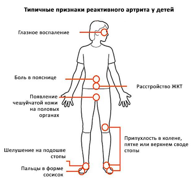 типичные признаки реактивного артрита у детей
