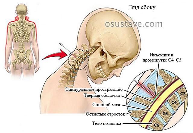 эпидуральная инъекция в шейный отдел позвоночника