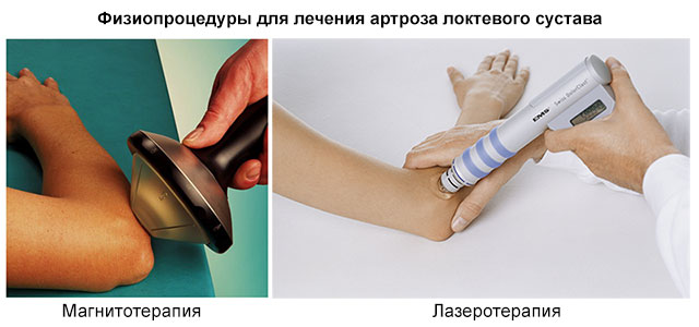 физиопроцедуры для лечения локтевого сустава – магнитотерапия и лазеротерапия