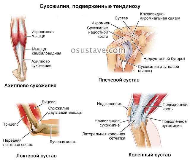 сухожилия, подверженные тендинозу