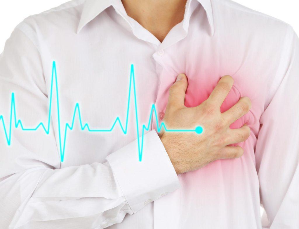 Клинический синдром проявляется приступообразной болью в грудной клетке давящего и сжимающего характера