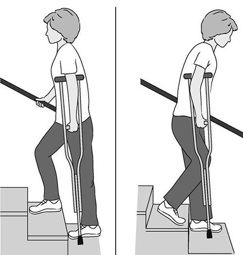 хождение по лестнице с костылями