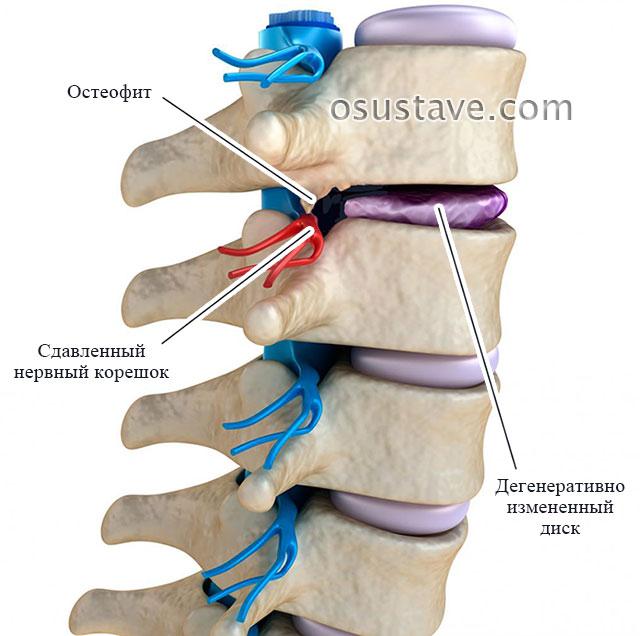 сдавление нервного корешка остеофитом