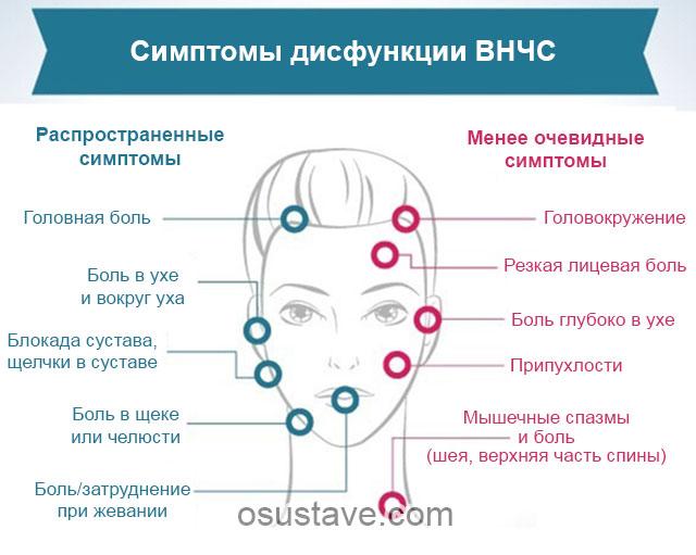 симптомы дисфункции внчс