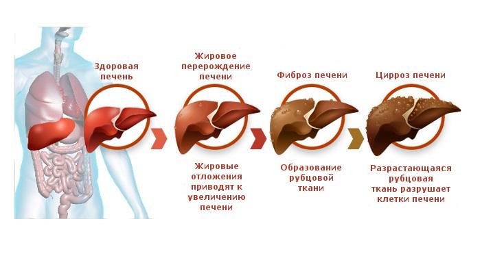 Прогноз для пациента с циррозом печени