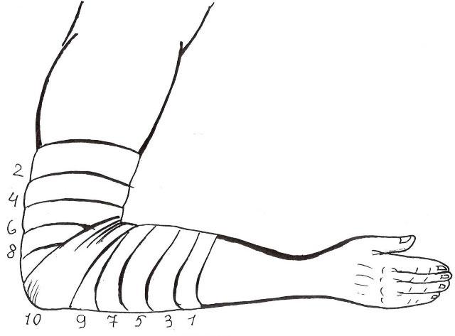 черепашья сходящаяся повязка на локтевой сустав