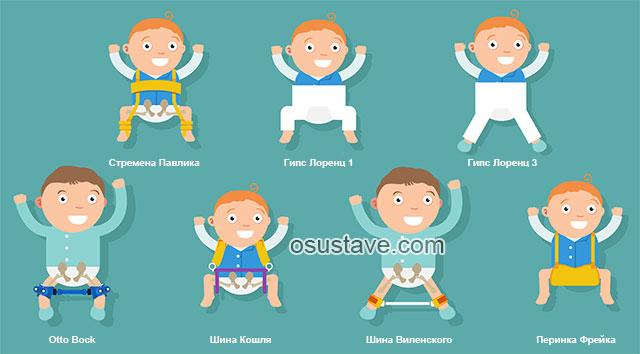 различные виды специальных фиксирующих ортопедических конструкций