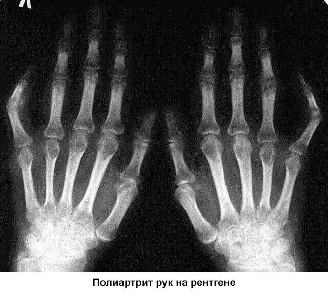 рентген кистей рук при полиартрите