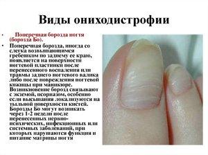 Лечение ониходистрофии ногтей