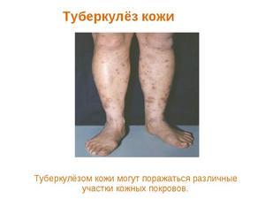 Кожный туберкулез