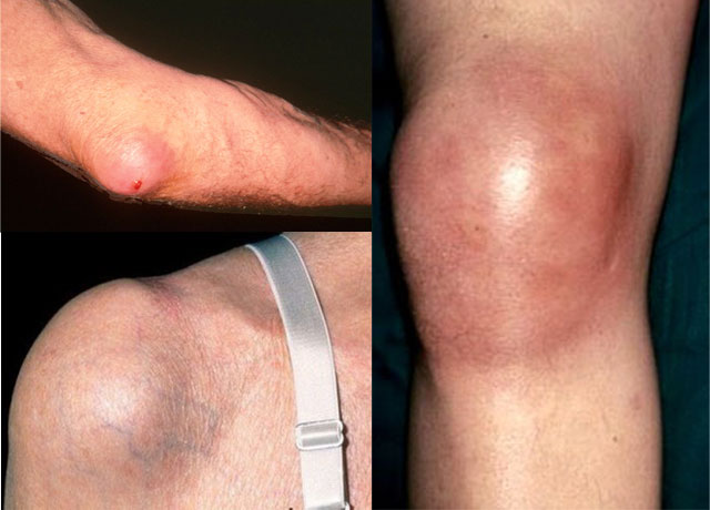 плечевой, коленный и локтевой бурсит