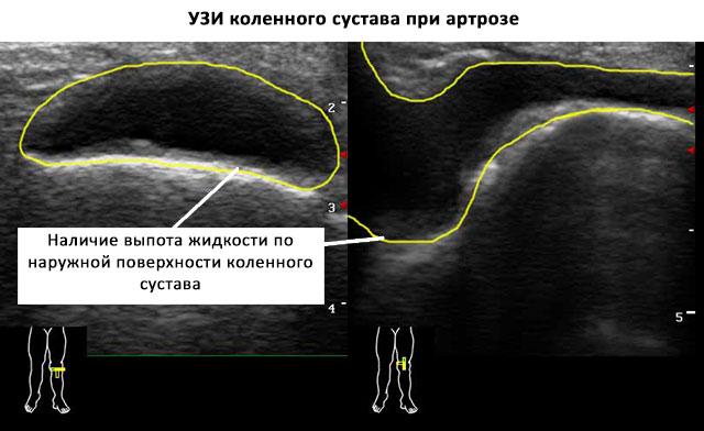 УЗИ коленного сустава с артрозом