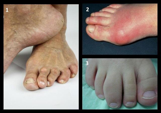 внешний вид стопы при различных артритах