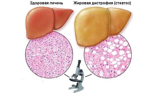 Жировой стеатоз печени