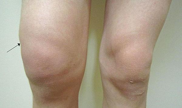 опухшее колено после инъекции