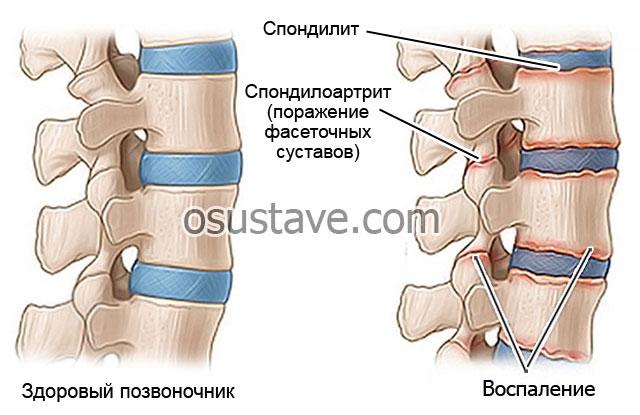 спондилоартрит и спондилит