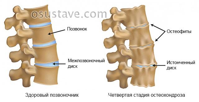 четвертая стадия остеохондроза