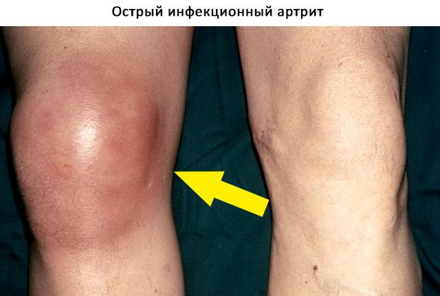 острый инфекционный артрит