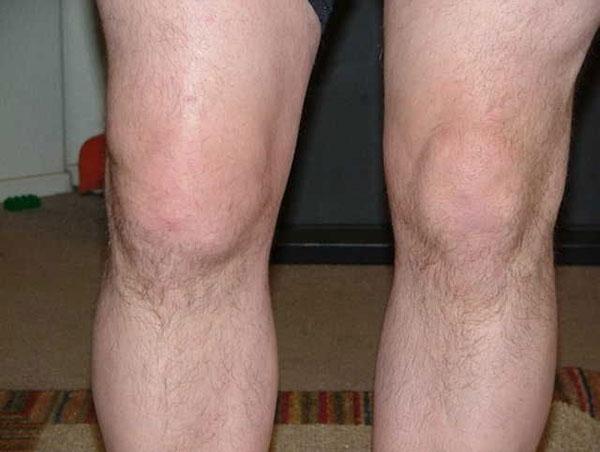 небольшой отек правого коленного сустава