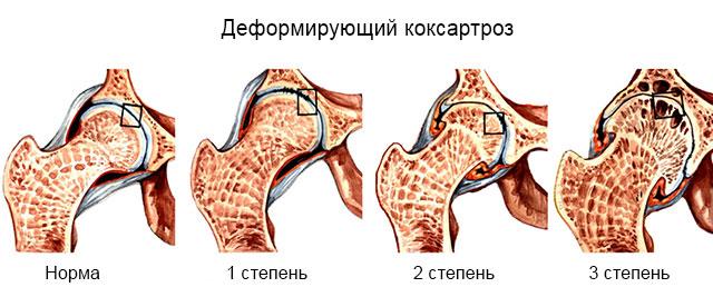 степени развития коксартроза