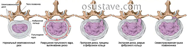 процессы в дисках при остеохондрозе