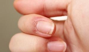 Первая помощь при зуде кожи