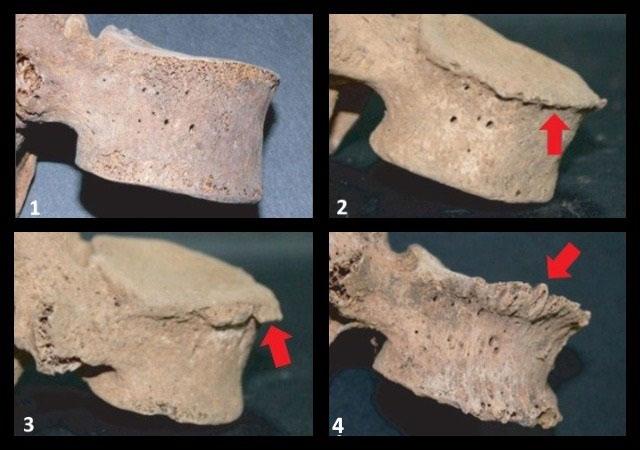 костные выросты по краям тел позвонков