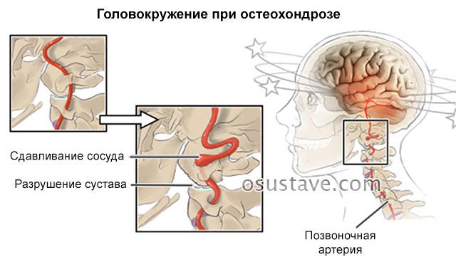 сдавливание сосуда при остеохондрозе вызывает головокружение