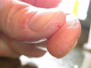 Грибок на пальцах рук