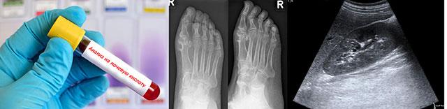 анализ крови, рентгенография и УЗИ-исследование при подагре