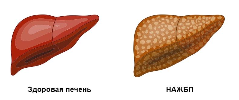 Неалкогольный стеатоз печени