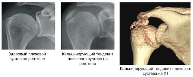 здоровый сустав и кальцинирующий тендинит плечевого сустава на рентгене и КТ