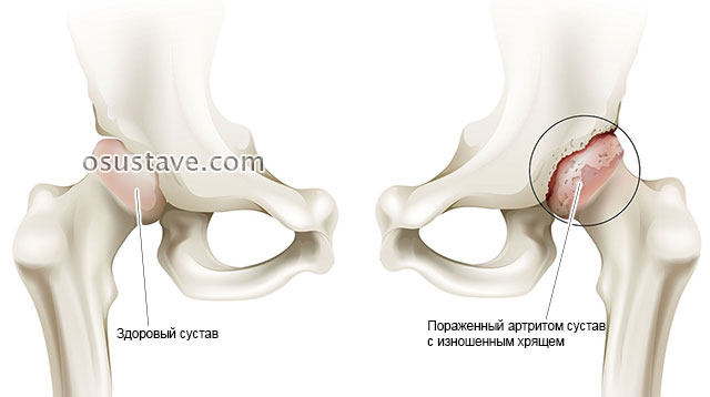 пораженный артритом тазобедренный сустав