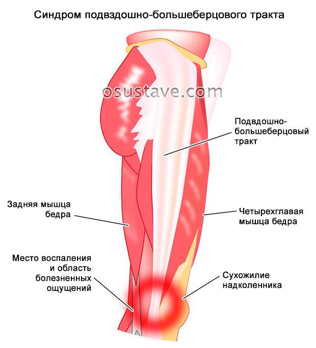 синдром подвздошно-большеберцового тракта