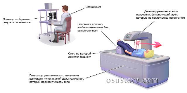денситометрия