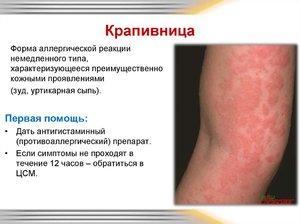 Уртикарная сыпь: причины возникновения