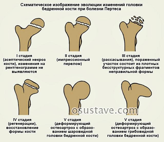 стадии болезни Пертеса