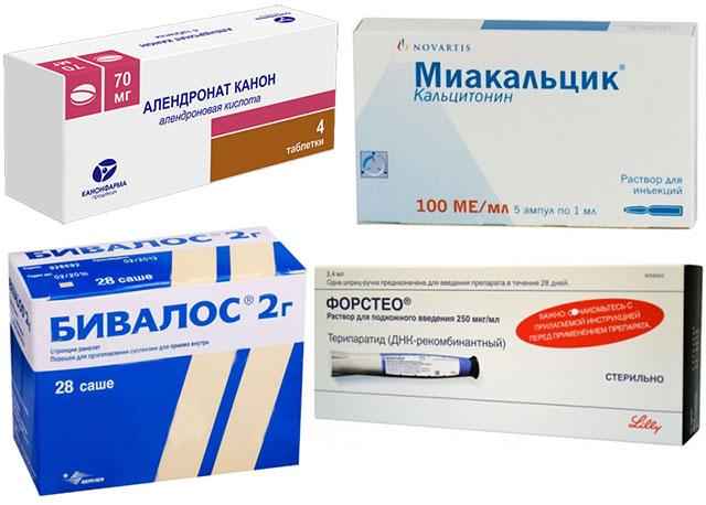 препараты для лечения остеопороза алендронат канон, миакальцик, бивалос 2, форстео