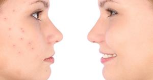 Папула на лице - причины и лечение