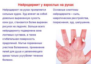 Терапия нейродермита