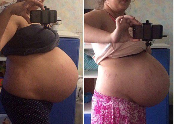 опущение живота у беременной фото до и после
