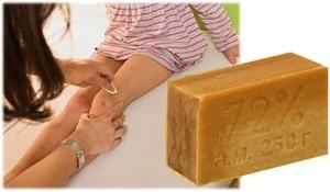 Удаление папиллом хозяйственным мылом в домашних условиях