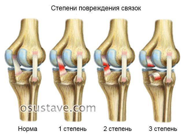степени повреждения крестообразных связок коленного сустава