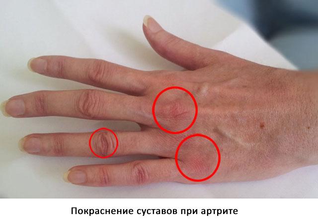покраснение суставов при артрите