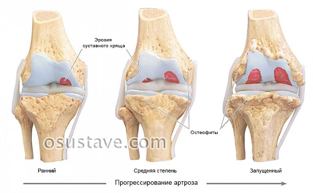 образование остеофитов коленного сустава