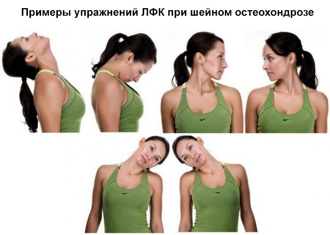 примеры упражнений ЛФК при шейном остеохондрозе