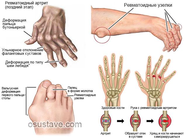 пальцы рук и ног, пораженные ревматоидным артритом
